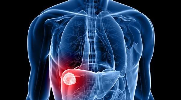 Este importante órgano se encarga de liberar bilis para digerir las grasas. Imegen de Binipatia